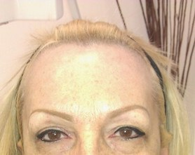 how to fix gray tattoed eyebrows