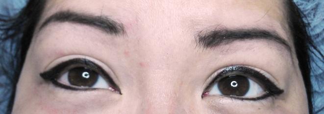 Permanent eyeliner eye infection