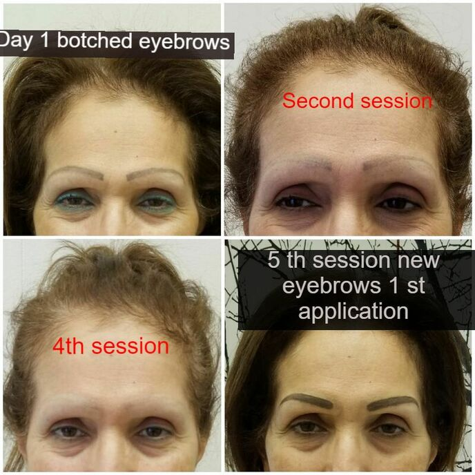 Permanent Makeup Correction Eyebrows Tattoo Fix Cosmetic